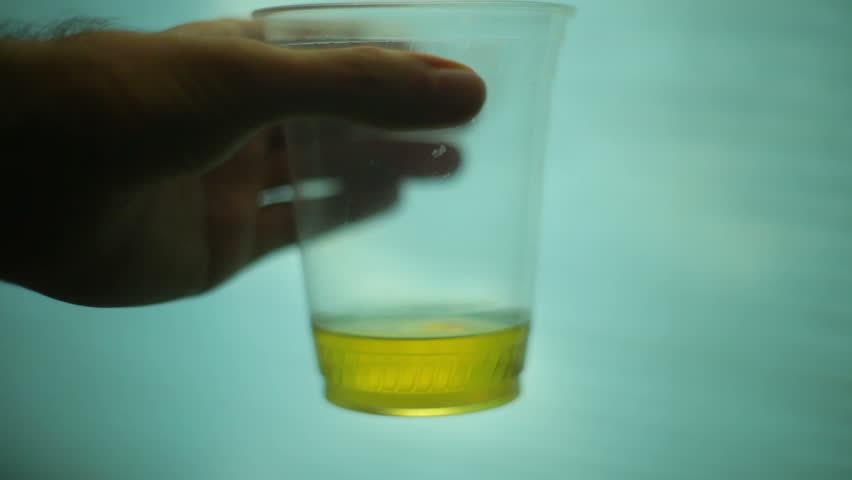 skummande urin orsaker